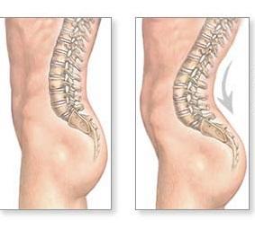 What is Anterior Pelvic Tilt?